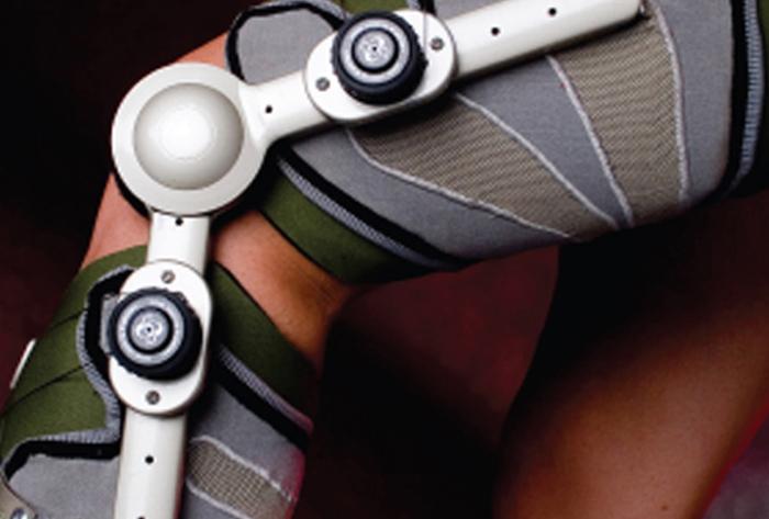 膝关节矫正器设计,革命性的膝盖修复器